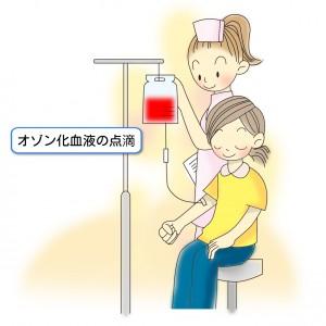 オゾン化血液の点滴